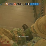 I aced(killed lesion before hand.